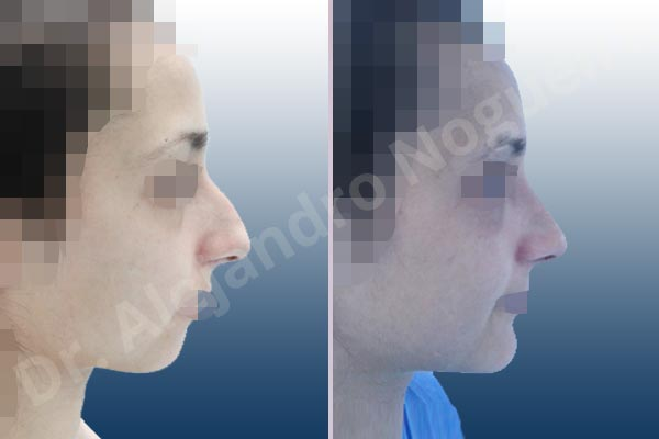 Before & After Case IFJA79PQ