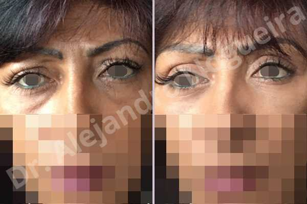 Before & After Case IM3CFCGA
