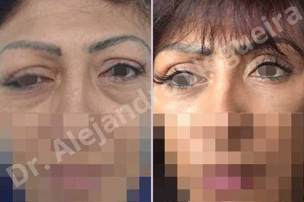 Baggy lower eyelids,Baggy upper eyelids,Saggy upper eyelids,Upper eyelids ptosis,Lower eyelid fat bags resection,Transconjunctival approach incision,Upper eyelid fat bags resection,Upper eyelid skin and muscle resection - photo 2