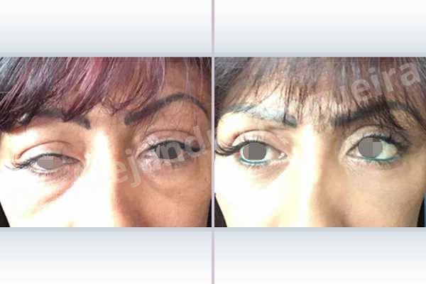 Baggy lower eyelids,Baggy upper eyelids,Saggy upper eyelids,Upper eyelids ptosis,Lower eyelid fat bags resection,Transconjunctival approach incision,Upper eyelid fat bags resection,Upper eyelid skin and muscle resection - photo 3