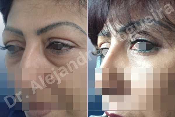 Baggy lower eyelids,Baggy upper eyelids,Saggy upper eyelids,Upper eyelids ptosis,Lower eyelid fat bags resection,Transconjunctival approach incision,Upper eyelid fat bags resection,Upper eyelid skin and muscle resection - photo 5