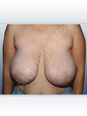 Asymmetric breasts,Breast tissue bottoming out,Cross eyed breasts,Extremely large breasts,Extremely saggy droopy breasts,Pendulous breasts,Severely large breasts,Severely saggy droopy breasts,Tuberous breasts,Anchor incision,Double vertical pedicle