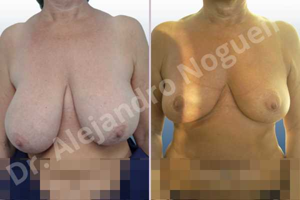 Asymmetric breasts,Breast tissue bottoming out,Cross eyed breasts,Extremely saggy droopy breasts,Mildly large breasts,Pendulous breasts,Severely large breasts,Tuberous breasts,Anchor incision,Double vertical pedicle - photo 1