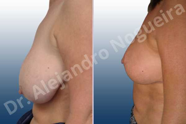 Asymmetric breasts,Breast tissue bottoming out,Cross eyed breasts,Extremely saggy droopy breasts,Mildly large breasts,Pendulous breasts,Severely large breasts,Tuberous breasts,Anchor incision,Double vertical pedicle - photo 2