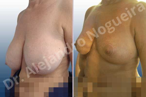 Asymmetric breasts,Breast tissue bottoming out,Cross eyed breasts,Extremely saggy droopy breasts,Mildly large breasts,Pendulous breasts,Severely large breasts,Tuberous breasts,Anchor incision,Double vertical pedicle - photo 3