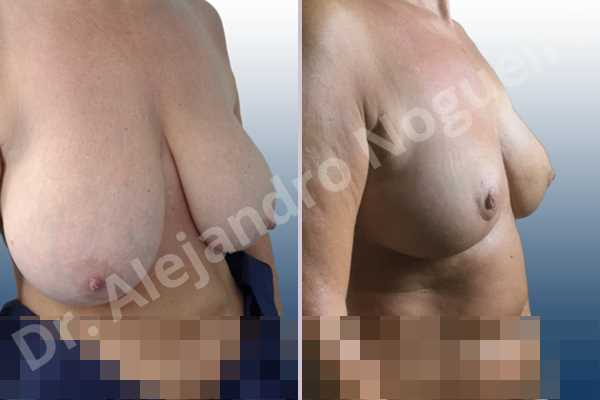 Before & After Case IX9HJY4Q