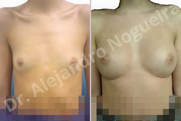Asymmetric breasts,Lateral breasts,Narrow breasts,Skinny breasts,Small breasts,Too far apart wide cleavage breast implants,Anatomical shape,Inframammary incision,Subfascial pocket plane - photo 1