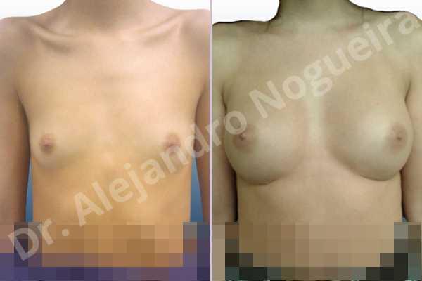 Before & After Case J3ETNXCH