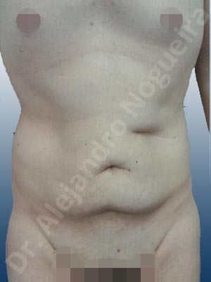 Saggy abdomen,Standard abdominoplasty