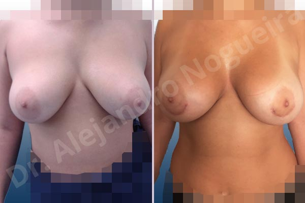 Asymmetric breasts,Empty breasts,Mildly large breasts,Moderately saggy droopy breasts,Wide breasts,Anatomical shape,Extra large size,Lower hemi periareolar incision,Subfascial pocket plane