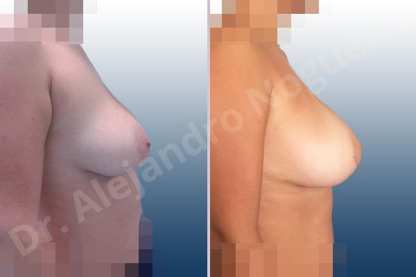 Asymmetric breasts,Empty breasts,Mildly large breasts,Moderately saggy droopy breasts,Wide breasts,Anatomical shape,Extra large size,Lower hemi periareolar incision,Subfascial pocket plane - photo 4