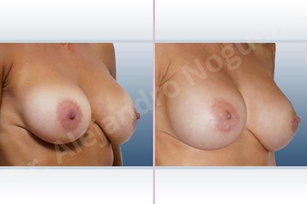 Before & After Case J8PQKVM3