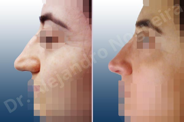 Broad dorsum,Broad nose,Crooked nose,Dorsum hump,Dorsum ridges,Droopy tip,Dynamic alar flaring,Large alar cartilages,Long nose,Long septum,Mediterranean nose,Overprojected tip,Plunging tip deformity,Thin skin nose,Caudal septum resection,Closed approach incision,Dorsum hump resection,Lateral cruras cephalic resection,Lateral cruras shortening resection,Medial cruras shortening resection,Nasal bones osteotomies,Triangular cartilages caudal resection - photo 2
