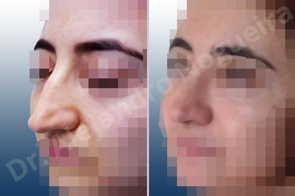 Broad dorsum,Broad nose,Crooked nose,Dorsum hump,Dorsum ridges,Droopy tip,Dynamic alar flaring,Large alar cartilages,Long nose,Long septum,Mediterranean nose,Overprojected tip,Plunging tip deformity,Thin skin nose,Caudal septum resection,Closed approach incision,Dorsum hump resection,Lateral cruras cephalic resection,Lateral cruras shortening resection,Medial cruras shortening resection,Nasal bones osteotomies,Triangular cartilages caudal resection - photo 3