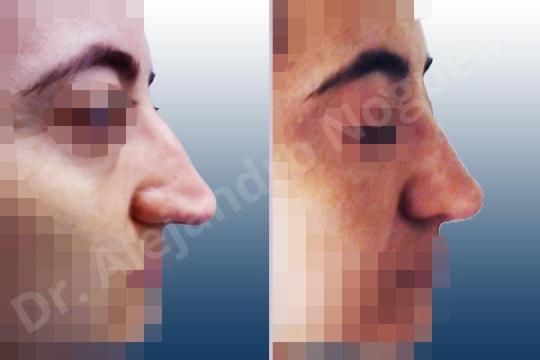 Broad dorsum,Broad nose,Crooked nose,Dorsum hump,Dorsum ridges,Droopy tip,Dynamic alar flaring,Large alar cartilages,Long nose,Long septum,Mediterranean nose,Overprojected tip,Plunging tip deformity,Thin skin nose,Caudal septum resection,Closed approach incision,Dorsum hump resection,Lateral cruras cephalic resection,Lateral cruras shortening resection,Medial cruras shortening resection,Nasal bones osteotomies,Triangular cartilages caudal resection - photo 4