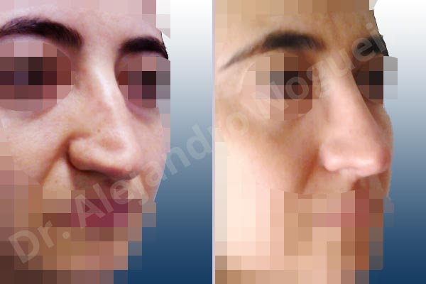 Broad dorsum,Broad nose,Crooked nose,Dorsum hump,Dorsum ridges,Droopy tip,Dynamic alar flaring,Large alar cartilages,Long nose,Long septum,Mediterranean nose,Overprojected tip,Plunging tip deformity,Thin skin nose,Caudal septum resection,Closed approach incision,Dorsum hump resection,Lateral cruras cephalic resection,Lateral cruras shortening resection,Medial cruras shortening resection,Nasal bones osteotomies,Triangular cartilages caudal resection - photo 5