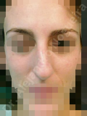 Crooked nose,Dorsum hump,Dorsum ridges,Droopy tip,Dynamic alar flaring,Large alar cartilages,Large nose,Long nose,Long septum,Long upper lateral cartilages,Mediterranean nose,Overprojected tip,Plunging tip deformity,Rhomboid dorsum,Supratip break,Thick skin nose,Caudal septum resection,Closed approach incision,Dorsum hump resection,Lateral cruras cephalic resection,Nasal bones osteotomies,Triangular cartilages caudal resection
