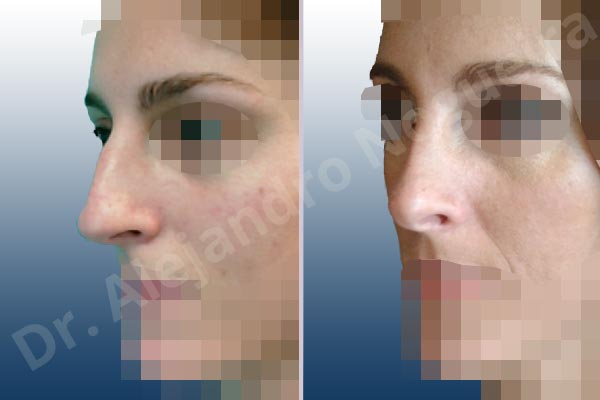 Crooked nose,Dorsum hump,Dorsum ridges,Droopy tip,Dynamic alar flaring,Large alar cartilages,Large nose,Long nose,Long septum,Long upper lateral cartilages,Mediterranean nose,Overprojected tip,Plunging tip deformity,Rhomboid dorsum,Supratip break,Thick skin nose,Caudal septum resection,Closed approach incision,Dorsum hump resection,Lateral cruras cephalic resection,Nasal bones osteotomies,Triangular cartilages caudal resection - photo 4