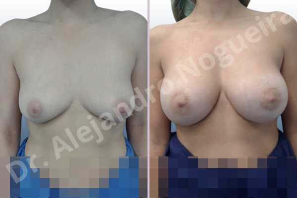 Empty breasts,Moderately saggy droopy breasts,Slightly large breasts,Wide breasts,Anatomical shape,Extra large size,Lower hemi periareolar incision,Subfascial pocket plane - photo 1