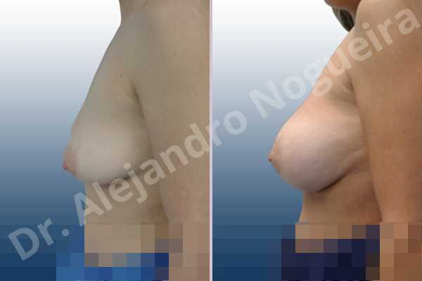 Empty breasts,Moderately saggy droopy breasts,Slightly large breasts,Wide breasts,Anatomical shape,Extra large size,Lower hemi periareolar incision,Subfascial pocket plane - photo 2