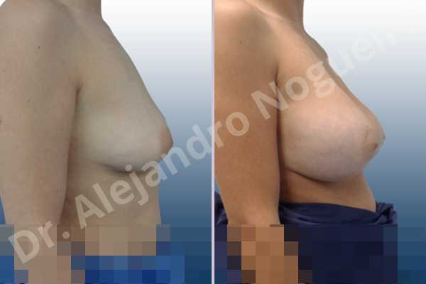 Empty breasts,Moderately saggy droopy breasts,Slightly large breasts,Wide breasts,Anatomical shape,Extra large size,Lower hemi periareolar incision,Subfascial pocket plane - photo 4