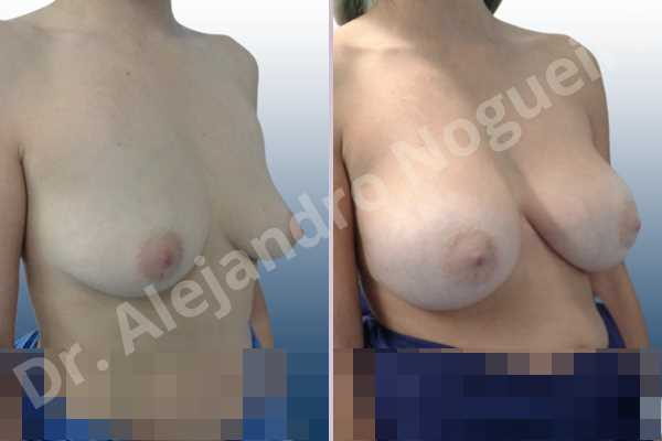 Empty breasts,Moderately saggy droopy breasts,Slightly large breasts,Wide breasts,Anatomical shape,Extra large size,Lower hemi periareolar incision,Subfascial pocket plane - photo 5