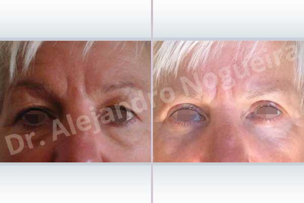 Baggy lower eyelids,Saggy upper eyelids,Lower eyelid fat bags resection,Transconjunctival approach incision,Upper eyelid skin and muscle resection - photo 2