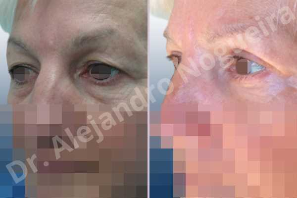 Baggy lower eyelids,Saggy upper eyelids,Lower eyelid fat bags resection,Transconjunctival approach incision,Upper eyelid skin and muscle resection - photo 4