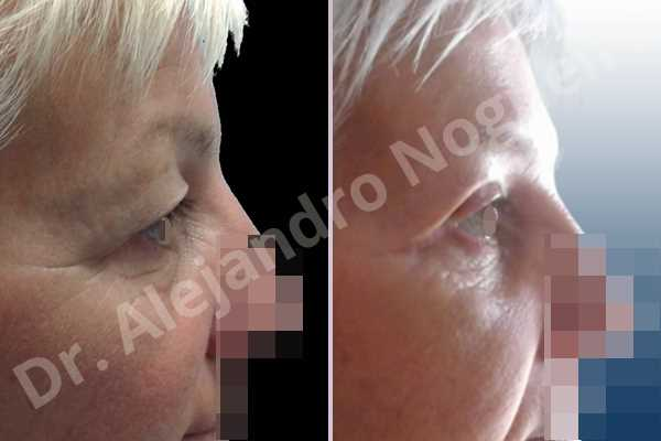 Baggy lower eyelids,Saggy upper eyelids,Lower eyelid fat bags resection,Transconjunctival approach incision,Upper eyelid skin and muscle resection - photo 5