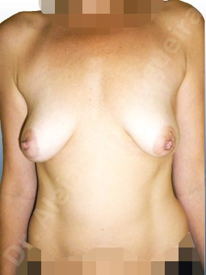 Empty breasts,Lateral breasts,Moderately saggy droopy breasts,Pigeon chest,Small breasts,Too far apart wide cleavage breasts,Tuberous breasts,Wide breasts,Anatomical shape,Extra large size,Lower hemi periareolar incision,Subfascial pocket plane,Tuberous mammoplasty
