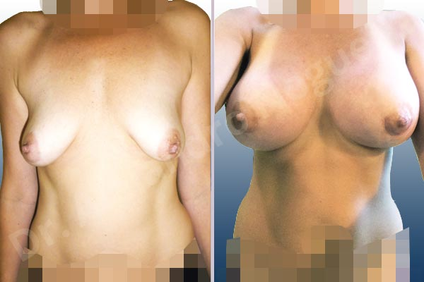 Empty breasts,Lateral breasts,Moderately saggy droopy breasts,Pigeon chest,Small breasts,Too far apart wide cleavage breasts,Tuberous breasts,Wide breasts,Anatomical shape,Extra large size,Lower hemi periareolar incision,Subfascial pocket plane,Tuberous mammoplasty - photo 1