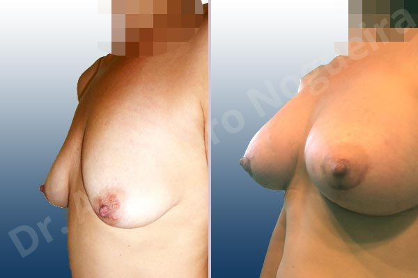 Empty breasts,Lateral breasts,Moderately saggy droopy breasts,Pigeon chest,Small breasts,Too far apart wide cleavage breasts,Tuberous breasts,Wide breasts,Anatomical shape,Extra large size,Lower hemi periareolar incision,Subfascial pocket plane,Tuberous mammoplasty - photo 3