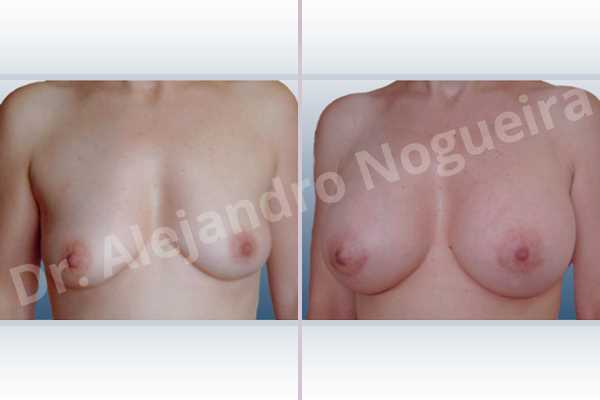 Asymmetric breasts,Empty breasts,Mildly saggy droopy breasts,Small breasts,Anatomical shape,Lower hemi periareolar incision,Subfascial pocket plane,Extra large size - photo 1