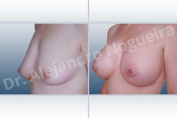 Asymmetric breasts,Empty breasts,Mildly saggy droopy breasts,Small breasts,Anatomical shape,Lower hemi periareolar incision,Subfascial pocket plane,Extra large size - photo 3