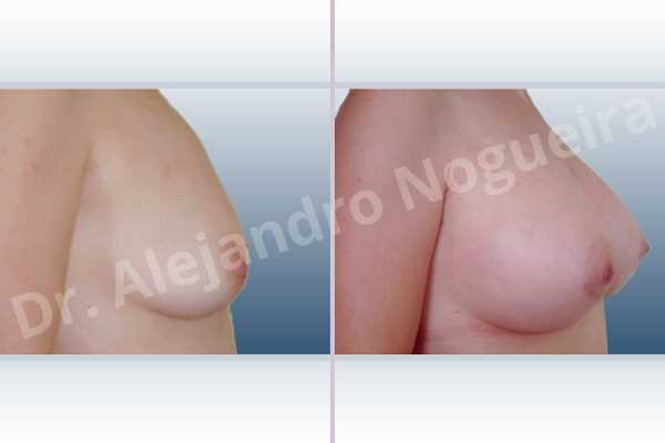 Asymmetric breasts,Empty breasts,Mildly saggy droopy breasts,Small breasts,Anatomical shape,Lower hemi periareolar incision,Subfascial pocket plane,Extra large size - photo 4