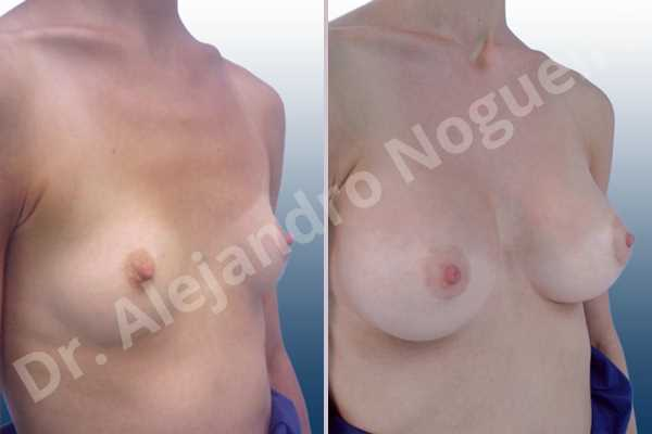 Empty breasts,Narrow breasts,Skinny breasts,Small breasts,Sunken chest,Too far apart wide cleavage breasts,Anatomical shape,Lower hemi periareolar incision,Subfascial pocket plane - photo 5
