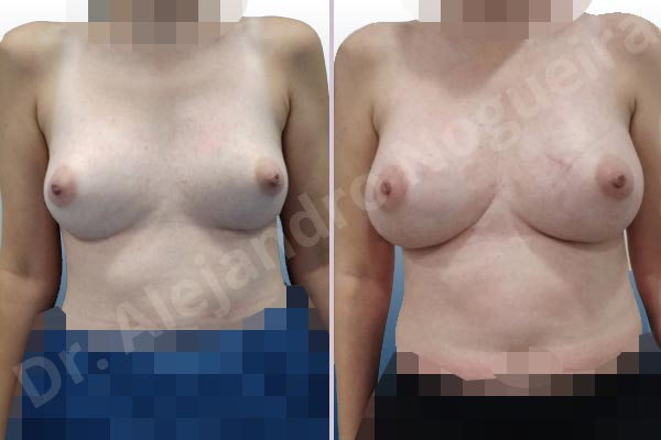 Asymmetric breasts,Breast implants animation muscle flex deformity,Breast implants capsular contracture,Breast implants capsule calcification,Breast implants cleavage tenting,Breast implants displacement malposition,Breast implants double bubble deformity,Breast implants excessive movement,Breast implants lateral slide,Breast implants side boob,Breast implants symmastia uniboob,Breast tissue necrosis,Cross eyed breasts,Cross eyed breasts implants,Displaced malpositioned scars,Empty breasts,Lateral breasts,Narrow breasts,Pigeon chest,Small breasts,Too far apart wide cleavage breast implants,Too far apart wide cleavage breasts,Too wide breast implants,Anatomical shape,Capsulectomy,Custom incision,Excisional scar revision,Inframammary incision,Subfascial pocket plane - photo 1
