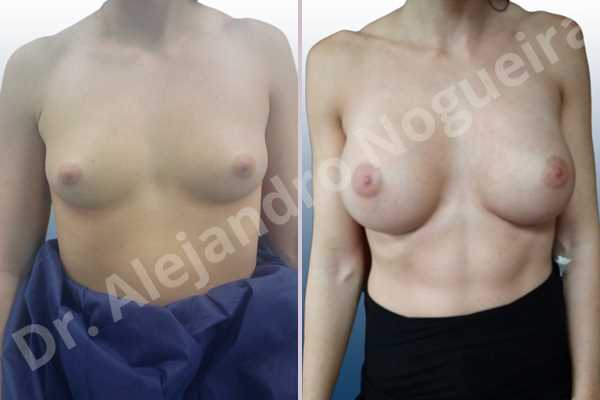 Empty breasts,Lateral breasts,Skinny breasts,Small breasts,Too far apart wide cleavage breasts,Wide breasts,Anatomical shape,Extra large size,Inframammary incision,Subfascial pocket plane - photo 1