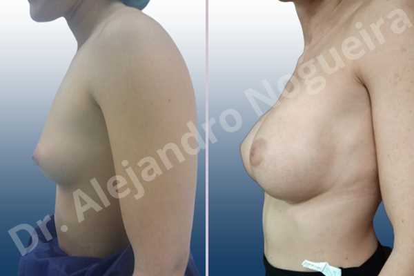 Empty breasts,Lateral breasts,Skinny breasts,Small breasts,Too far apart wide cleavage breasts,Wide breasts,Anatomical shape,Extra large size,Inframammary incision,Subfascial pocket plane - photo 2