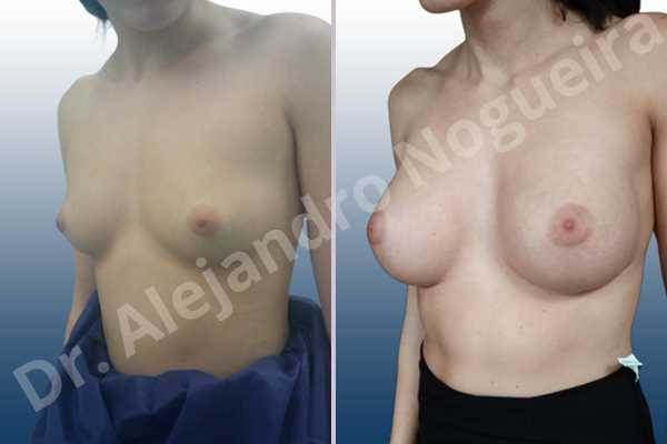 Empty breasts,Lateral breasts,Skinny breasts,Small breasts,Too far apart wide cleavage breasts,Wide breasts,Anatomical shape,Extra large size,Inframammary incision,Subfascial pocket plane - photo 3