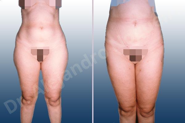 Fatty abdomen,Banana rolls flab,Fatty inner knee,Love handles flab,Saddle bags flab,Thigh gap flab,Tumescent liposuction
