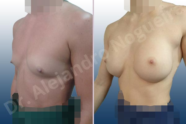 Asymmetric breasts,Empty breasts,Lateral breasts,Narrow breasts,Pigeon chest,Skinny breasts,Small breasts,Sunken chest,Too far apart wide cleavage breasts,Anatomical shape,Inframammary incision,Subfascial pocket plane - photo 3