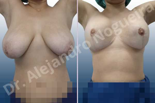 Asymmetric breasts,Empty breasts,Extremely saggy droopy breasts,Large areolas,Lateral breasts,Pendulous breasts,Severely large breasts,Too far apart wide cleavage breasts,Tuberous breasts,Anatomical shape,Anchor incision,Areola reduction,Double vertical pedicle,Extra large size,Subfascial pocket plane - photo 2
