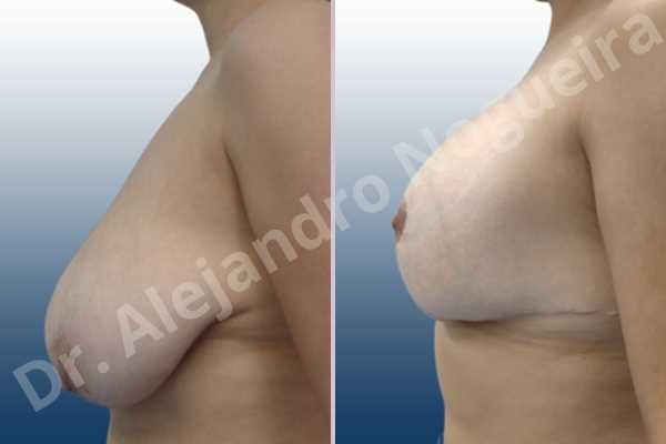 Asymmetric breasts,Empty breasts,Extremely saggy droopy breasts,Large areolas,Lateral breasts,Pendulous breasts,Severely large breasts,Too far apart wide cleavage breasts,Tuberous breasts,Anatomical shape,Anchor incision,Areola reduction,Double vertical pedicle,Extra large size,Subfascial pocket plane - photo 3