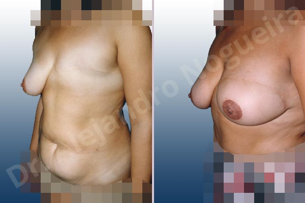 Asymmetric breasts,Breast loss mastectomy,Nipple areola complex reconstruction,Unilateral TRAM flap breast reconstruction,Free nipple areola complex graft - photo 1