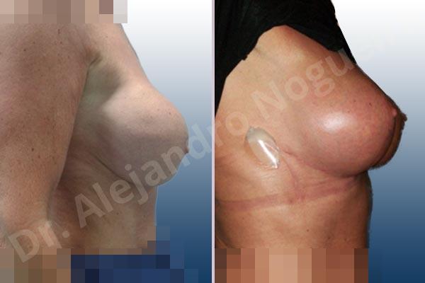 Before & After Case KK6X7DIJ