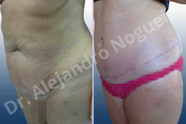 Saggy abdomen,Weak abdomen muscles,Standard abdominoplasty - photo 3