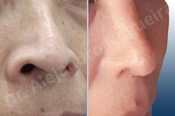 Before & After Case L2Y6DUD9