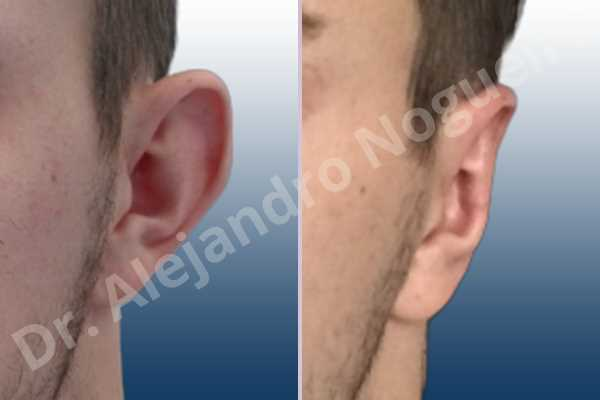 Before & After Case L4M2FYGK