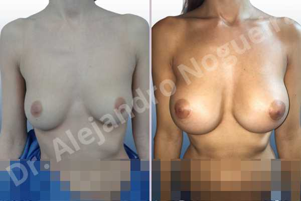 Asymmetric breasts,Empty breasts,Lateral breasts,Slightly saggy droopy breasts,Small breasts,Sunken chest,Too far apart wide cleavage breasts,Anatomical shape,Lower hemi periareolar incision,Subfascial pocket plane - photo 1